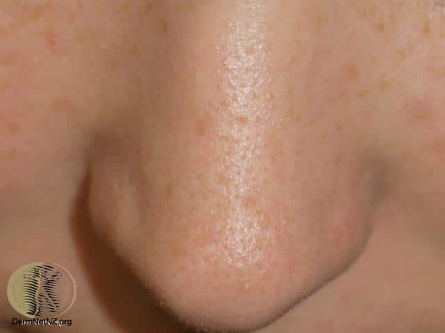 Are those spots on my nose really blackheads?