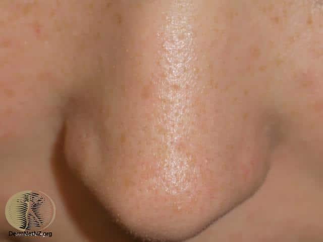 The Lantern Skin Studio